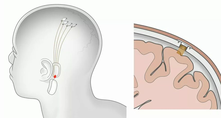 "neuralink, AI, Elon Musk's Neuralink unveils extraordinary ""brain-machine"" implant"